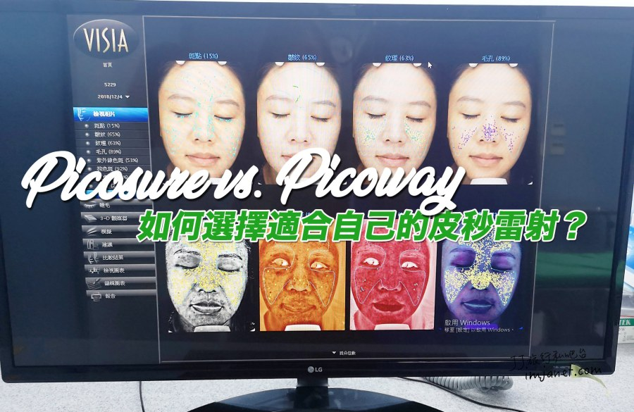 醫美 聖緹雅皮秒雷射PicoWay,和PicoSure有什麼差別?