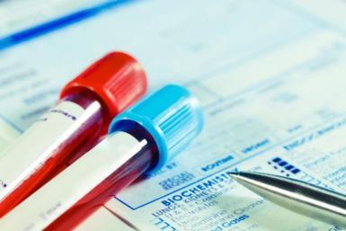 амоняк кръвен тест