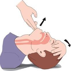 първа помощ при спиране на дишането