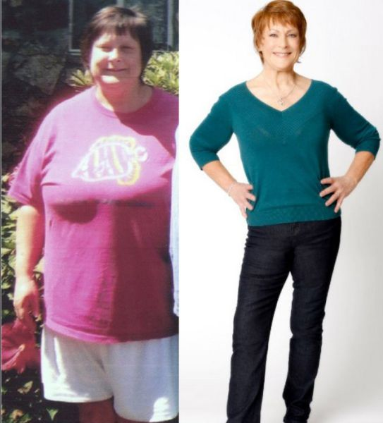 Amazing Weight Loss: Before and After (30 pics) - Picture ...