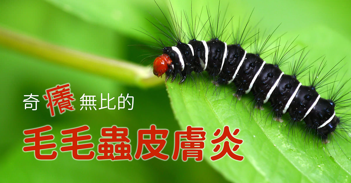毛毛蟲皮膚炎.caterpillar dermatitis