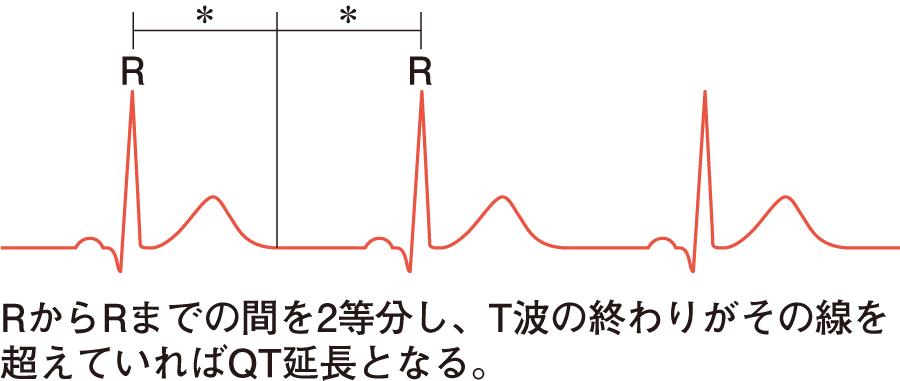 正常心電図|心電図とはなんだろう(4) | 看護roo![カンゴルー]
