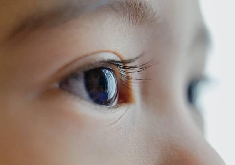 Q:角蛋白美睫是什麼? 它合法嗎? - 醫病平臺 - 自由健康網
