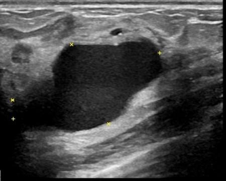 醫病》良性乳房腫瘤怎麼辦?微創切除恢復快! - 生活 - 自由時報電子報