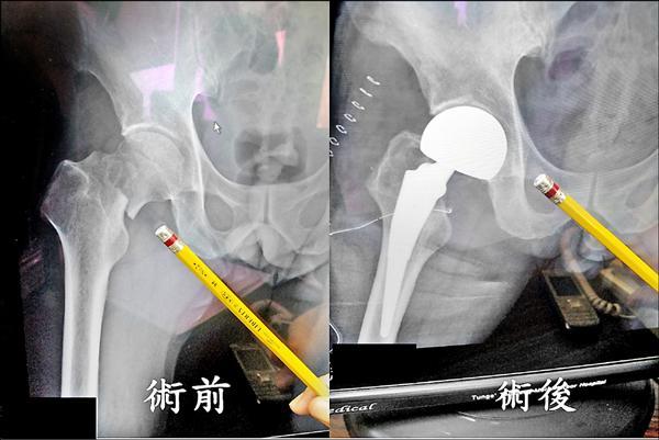 股骨頸骨折 微創手術5天即出院 - - 自由時報電子報