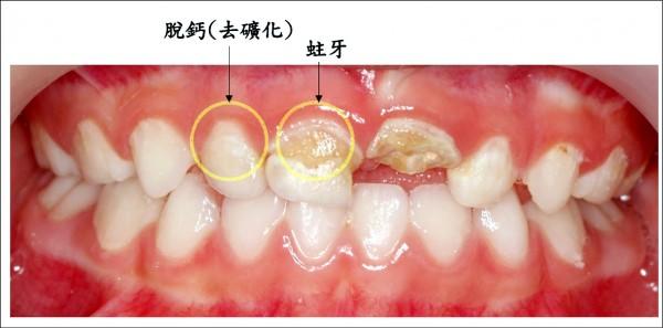 5歲童不刷牙 蛀牙蛀到細菌感染 - 生活 - 自由時報電子報