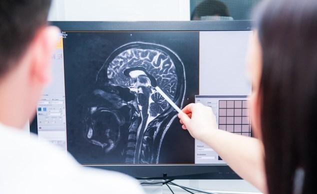 Brain (Photo: Okrasiuk, shutterstock)