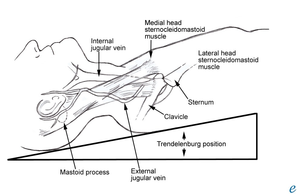 Internal jugular vein cannulation anatomy