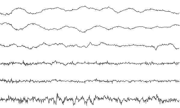 Sleep stage I EEG sample.