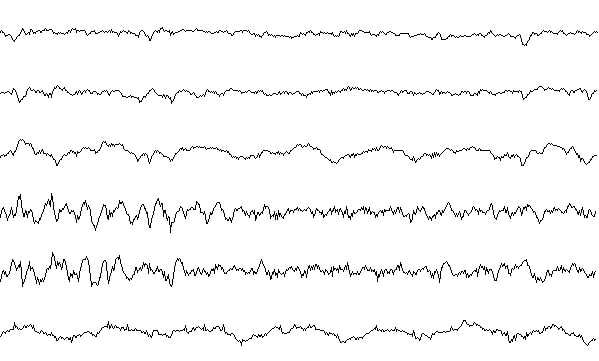 Sleep stage III EEG sample.