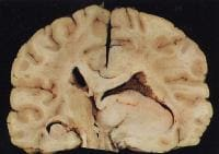 Gross specimen of a low-grade astrocytoma.