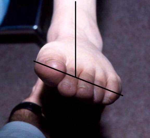 Fixed forefoot varus is characterized by elevatio...