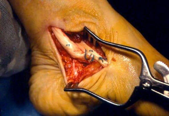 The flexor hallucis longus (FHL) tendon is rerout...