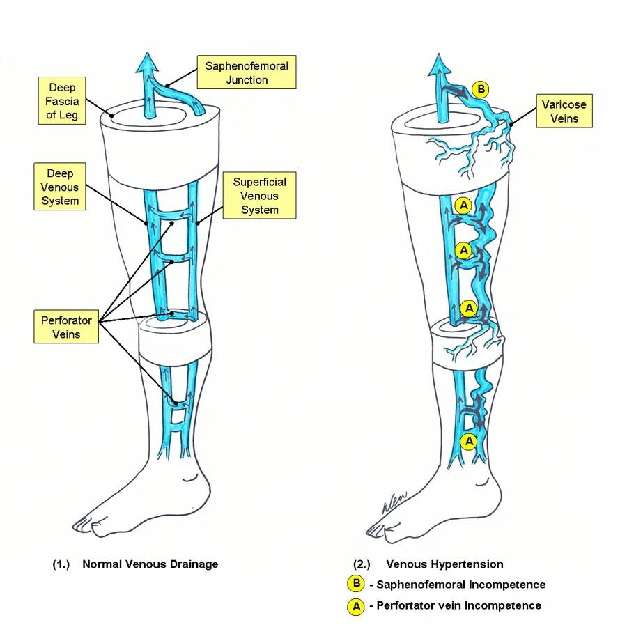 Image result for Varicose Vein Anatomy