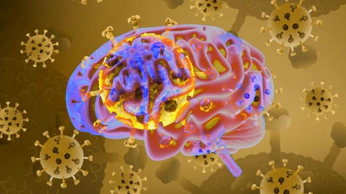 COVID May Cause Long-Term Brain Loss, Study Says