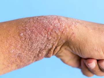 Image result for Plaque psoriasis