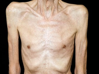 Image result for cancer cachexia