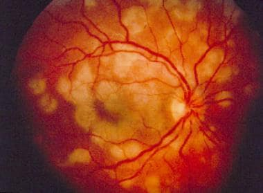 White Dot Syndromes Overview Acute Posterior Multifocal