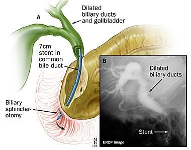 Image result for papillary ballooning biliary