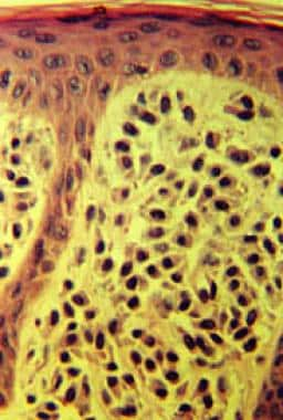 Hematoxylin and eosin stain revealing mast cells i