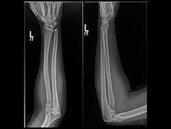 Nondisplaced Ulna Fracture Could Mean Intimate-Partner Violence 3