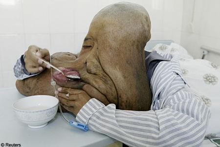 Huang Chuncai tumour operation