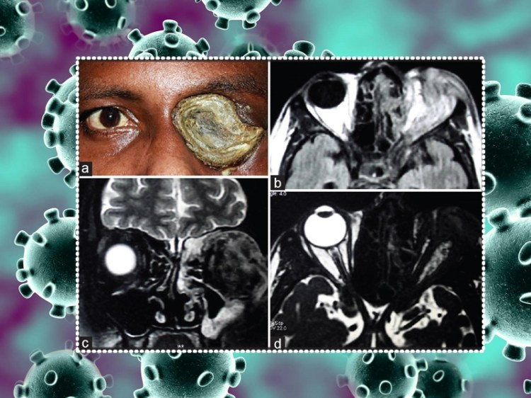 Health Alert mucormycosis Kali Fafund attacking corona patients know about  this disease symptoms and treatment