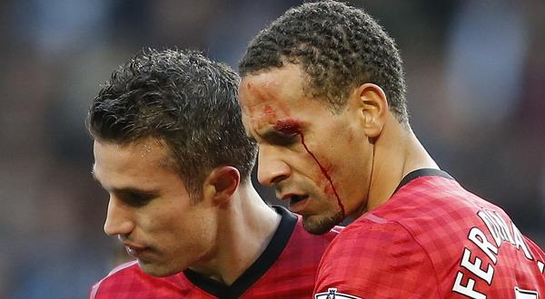 Pelipis kiri mata Rio Ferdinand berdarah usai terkena lemparan koin dari fan City (Foto: Reuters)