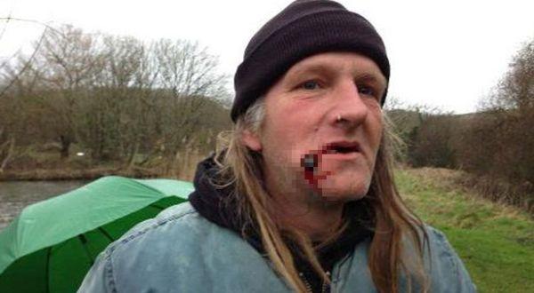 Kail yang tersangkut di pipi Steve (Foto: Mirror)