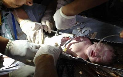 Bayi terjeit di Pipa (foto: Reuters)