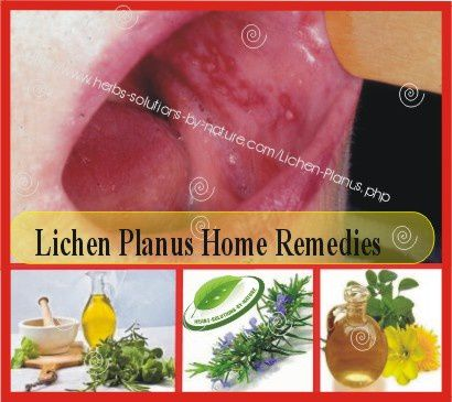 Natural Herbal Treatment And Home Remedy Remedies For