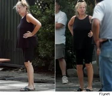 Barbra Streisand gets some plastic surgery