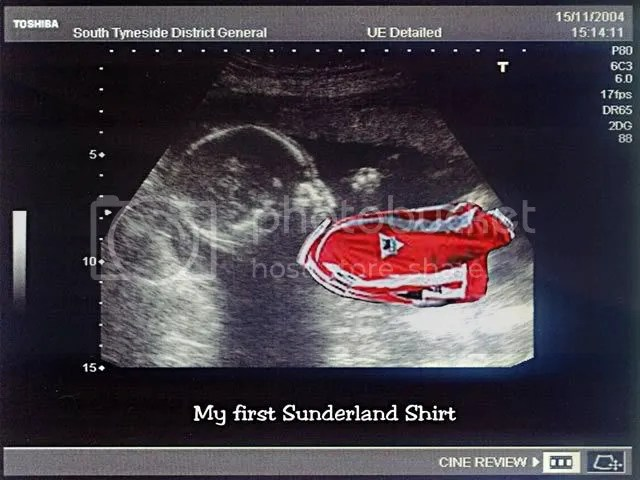 picture, scanned image of foetus in the womb, with Sunderland shirt
