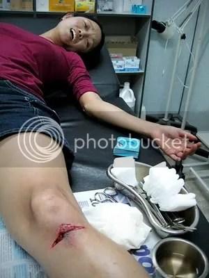 Injured Har