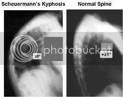 Scheuermann's Kyphosis