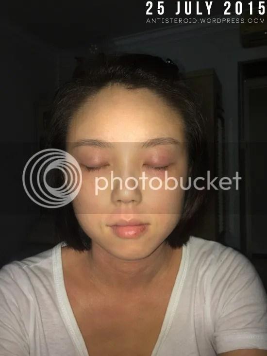 eye eczema