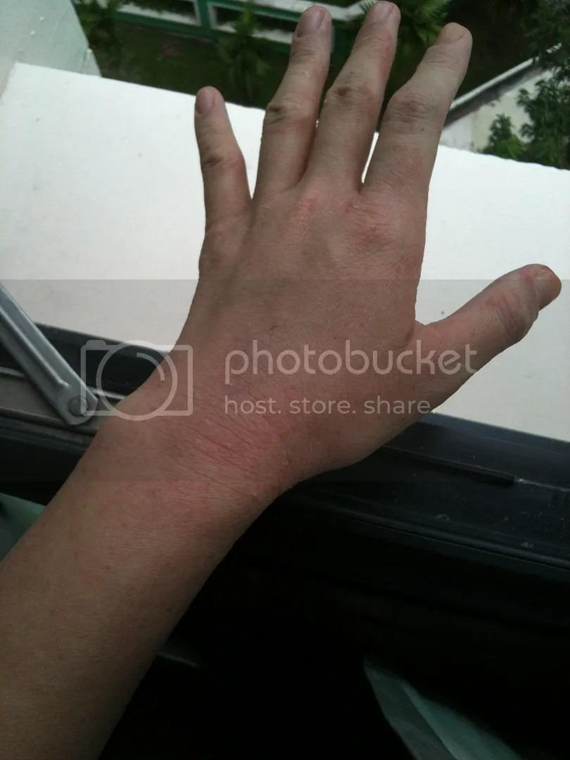 topical steroid withdrawal healing hand red skin not eczema rash