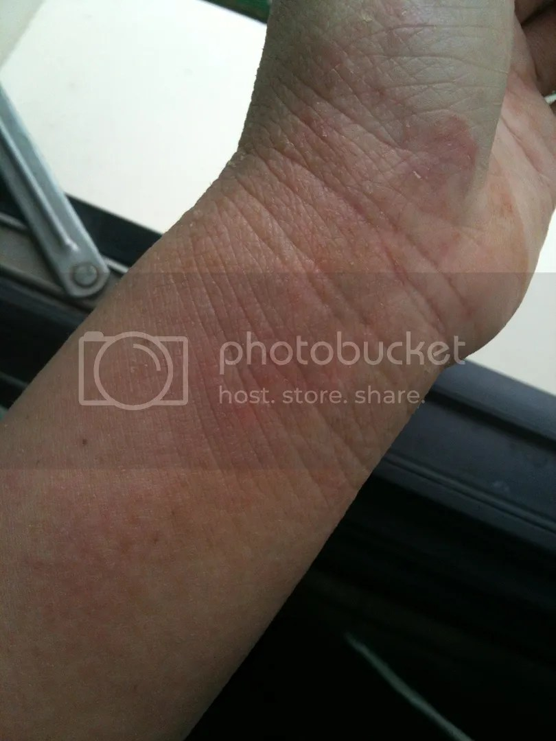 topical steroid withdrawal healing wrinkly wrist