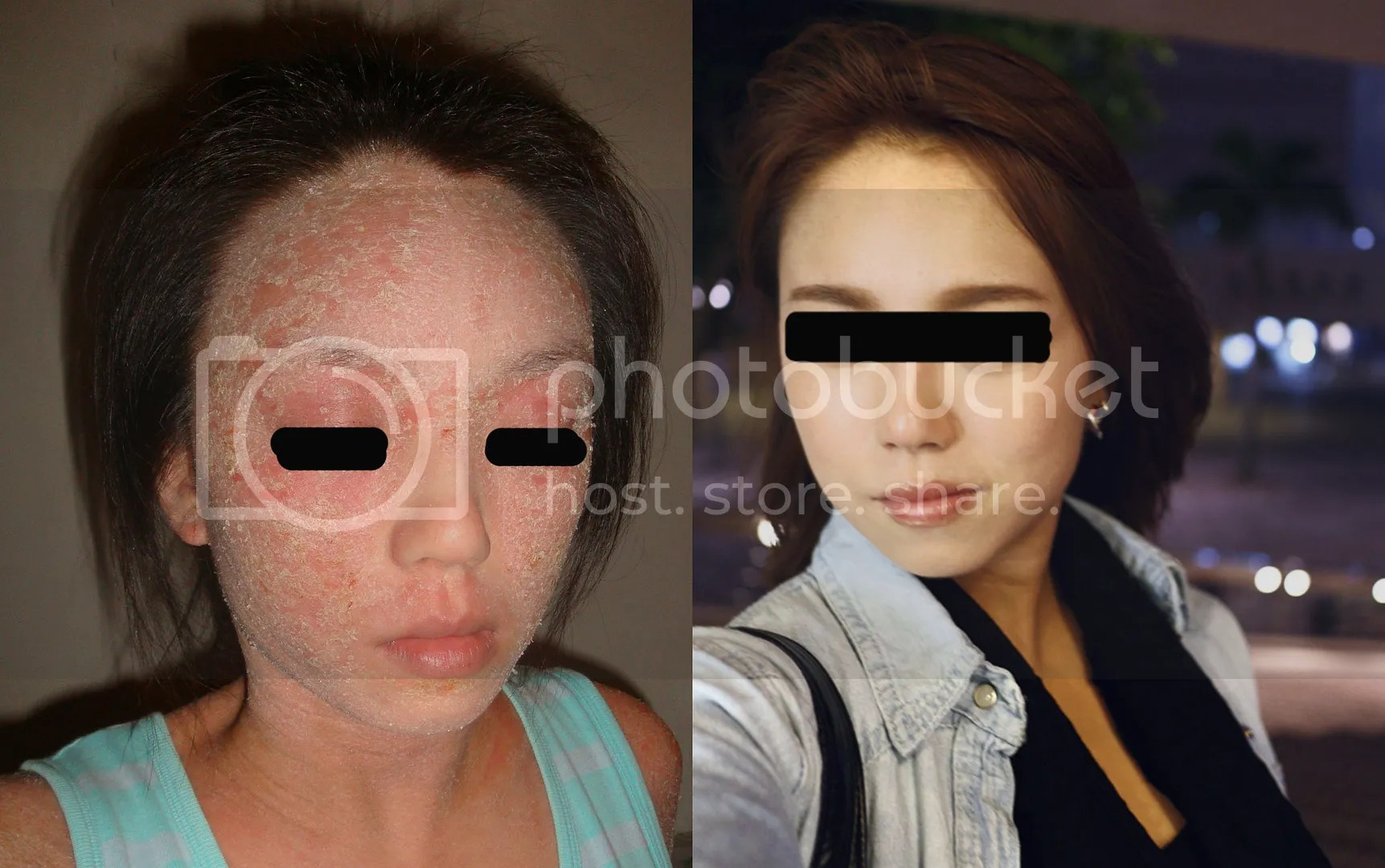 Topical steroid withdrawal before and after, healed