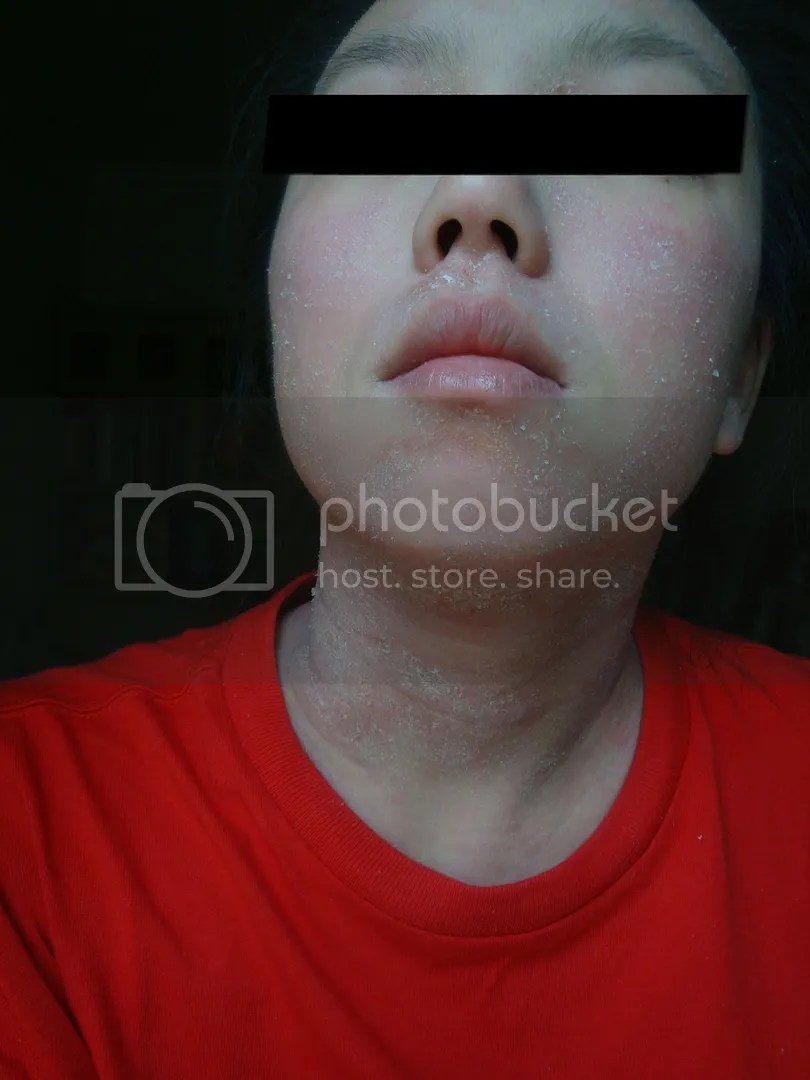 topical steroid withdrawal, red skin syndrome, red and dry neck
