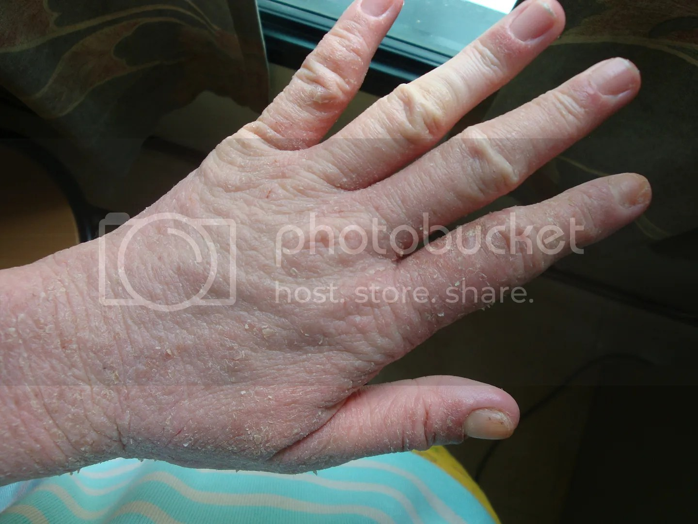 topical steroid withdrawal, swollen dry hand, deformed nails, red skin, not eczema