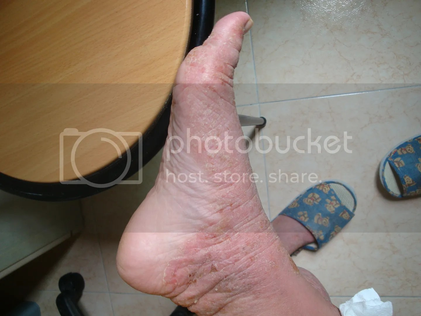 topical steroid withdrawal, red skin syndrome, feet