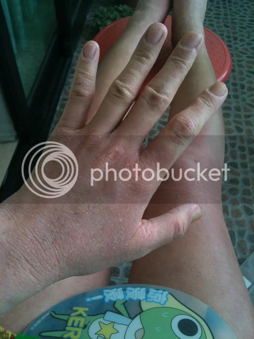 topical steroid withdrawal hand leg dark red skin not eczema rash