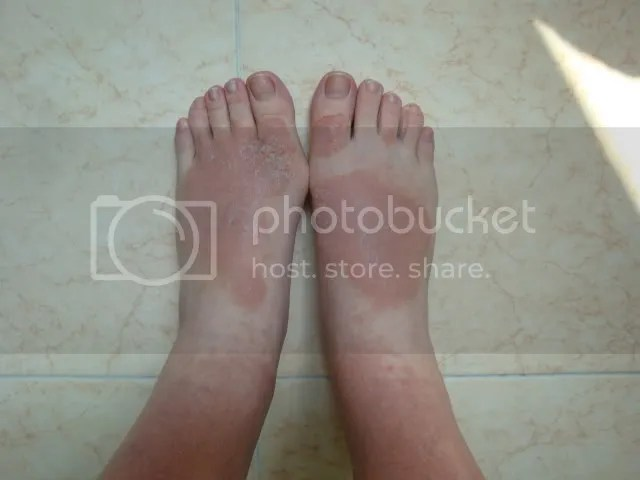 topical steroid withdrawal, feet rash flattening and spreading