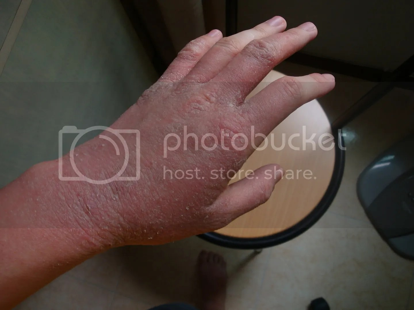 topical steroid withdrawal wrist  hand red skin not eczema