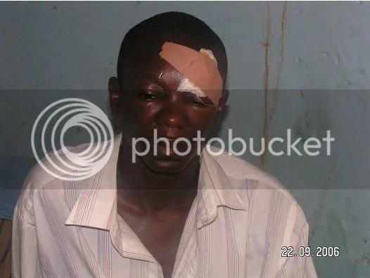Mr. Aderemi Ogunmola's head injury