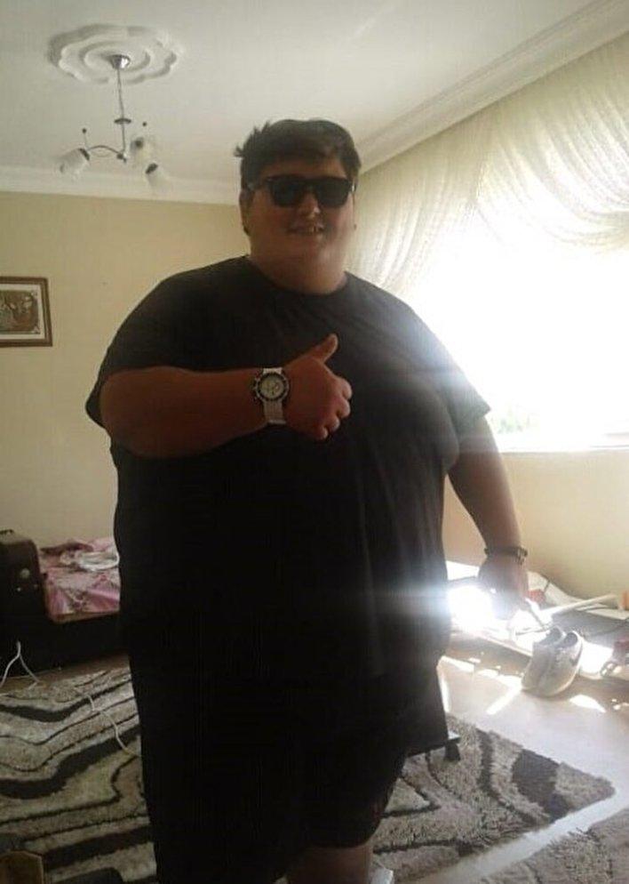 Alaplı'da yaşayan Akın Türkoğlu, 7 yaşından itibaren aşırı yemek yeme isteğinden dolayı kilo almaya başladı. Son 15 yılda hızla kilo alan Türkoğlu, 296 kiloya kadar çıktı.