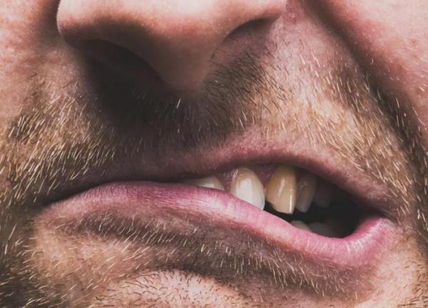 Стиснутые зубы и головная боль: взаимосвязь