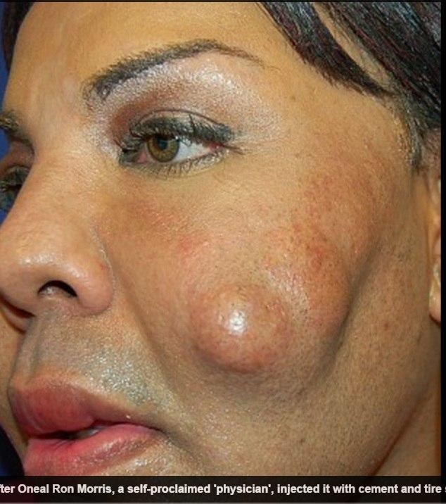 Após as injeções de mudança de vida, Rajee relembra que seu rosto ficou tão duro que parecia uma rocha