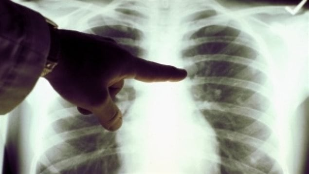 Un diagnostic de la tuberculose, une maladie qui affecte généralement les poumons.